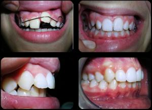 Ortodoncija (Mobilni aparati)