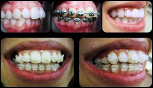 Ortodoncija (Fiksni aparati)