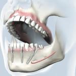 Implantologija